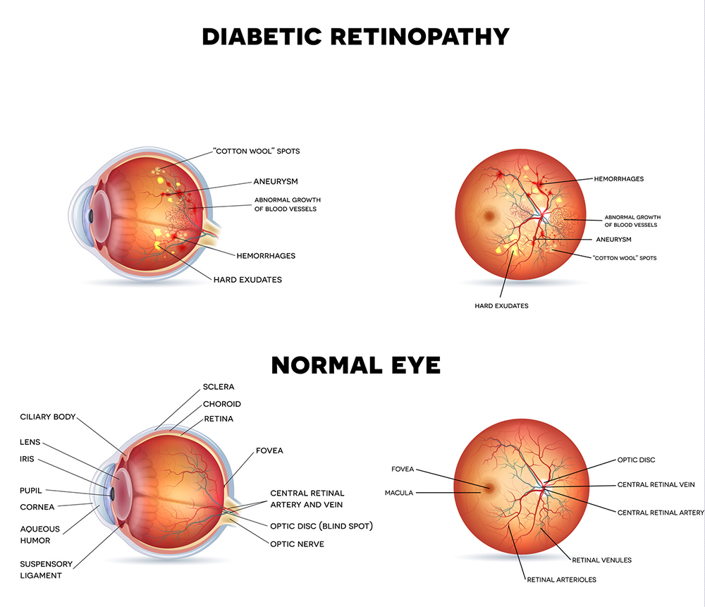 Forum on this topic: What Is Diabetic Retinopathy, what-is-diabetic-retinopathy/